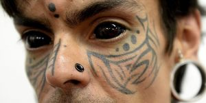 Most people have heard of tattooing the cornea before for health reasons.